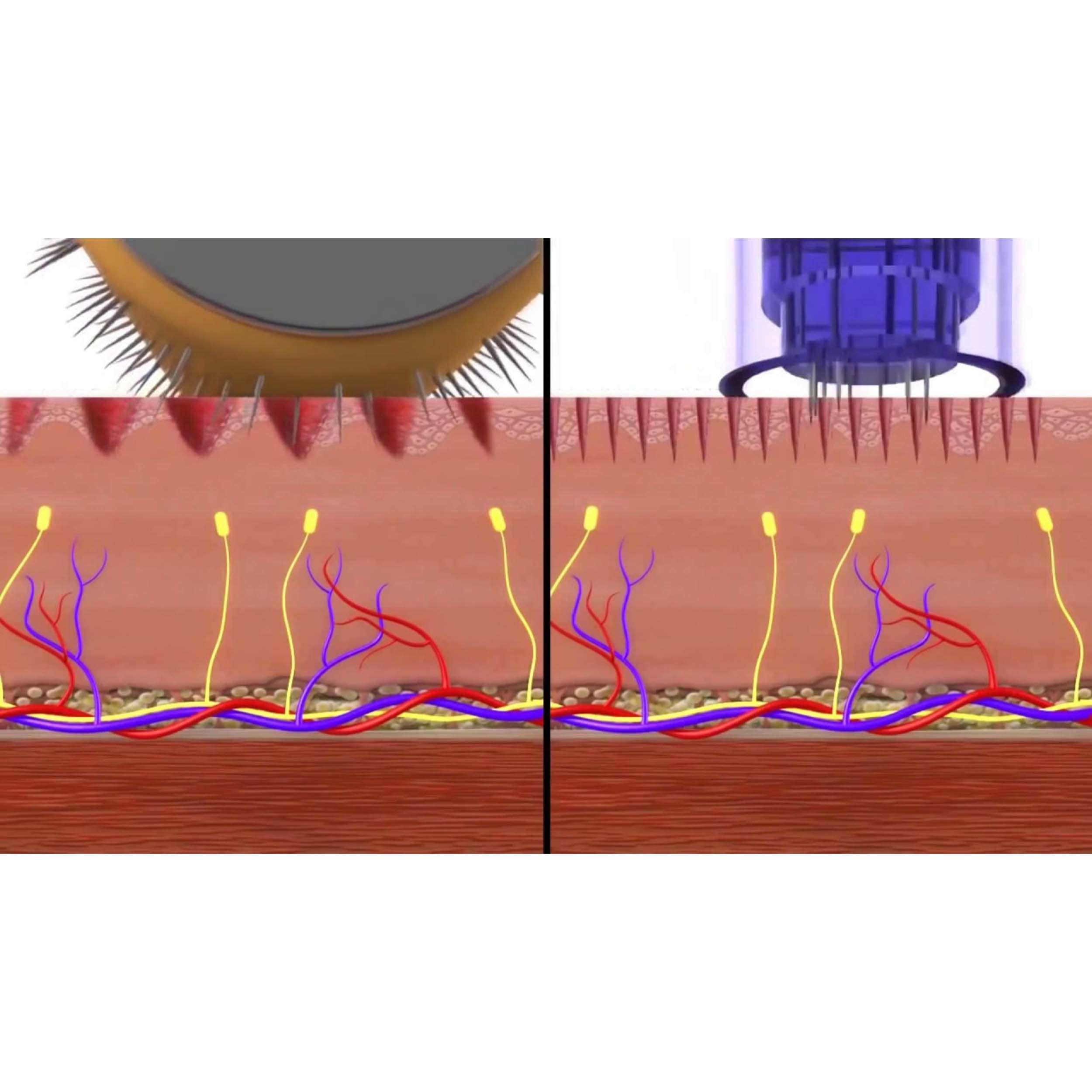 dermapen microneedling
